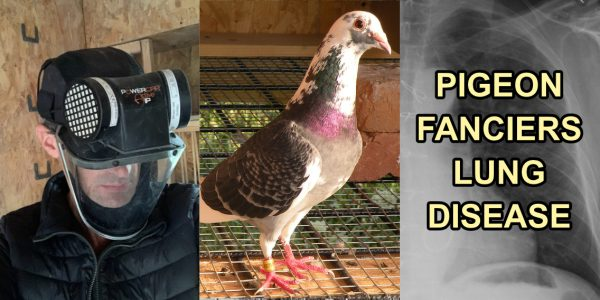 pigeon fanciers lung disease